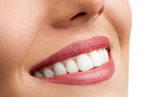 I denti sani: ancora un lusso?